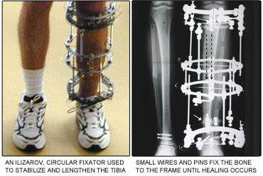Limb Lengthening And Deformity Correction Surgery - Beyond